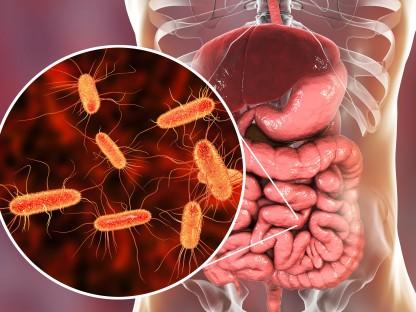 Darmflora - Mikrobiom