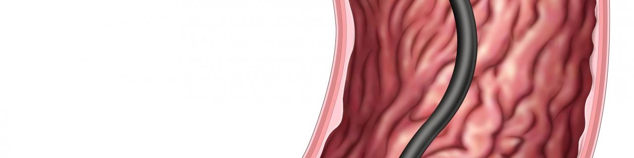 Magenspiegelung - Gastroskopie